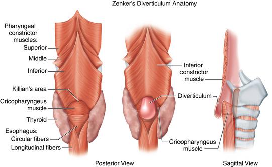 Zenkers Diverticulum Gastroenterologists In Florida