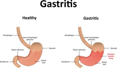 Gastritis – Gastroenterologists In Florida