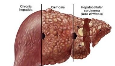 Hepatic cancer imaging