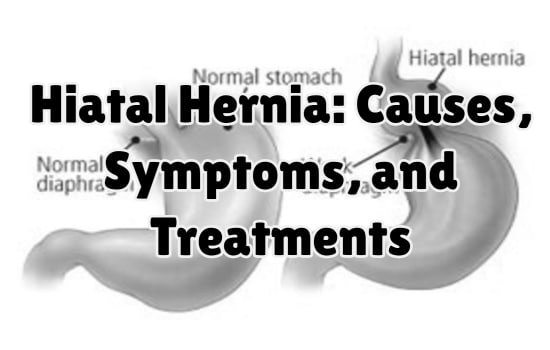 Hiatal Hernia: Causes, Symptoms, and Treatments