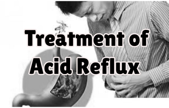 Nature's Way in the Treatment of Acid Reflux