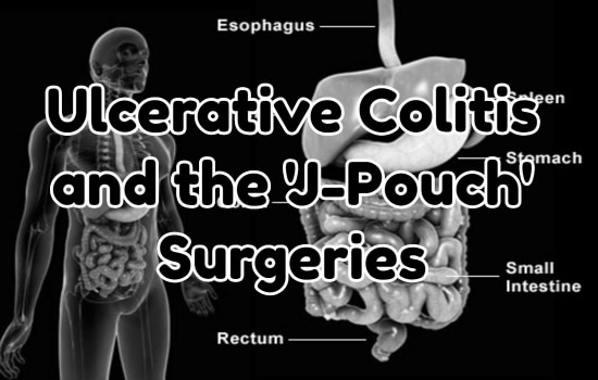Ulcerative Colitis and the 'J-Pouch' Surgeries: My Personal Story