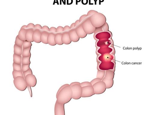 Colorectal Cancer Gastroenterologists In Florida