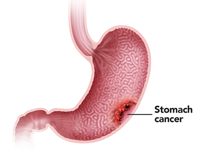 Gastric Cancer Gastroenterologists In Florida